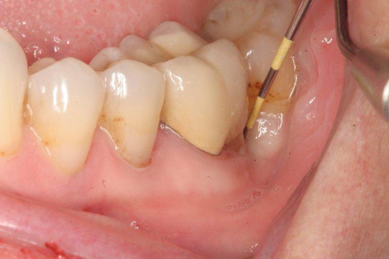 Viêm chân răng gây ra tình trạng nướu bị sưng tấy và viêm nhiễm