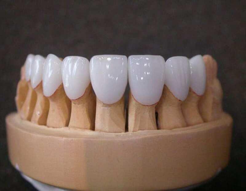 Việc sử dụng loại răng sứ Titan có giá thành rẻ hơn mà vẫn có thể đảm bảo được chức năng nhai
