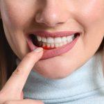 12 cách chữa viêm nha chu tại nhà bằng thảo dược hiệu quả