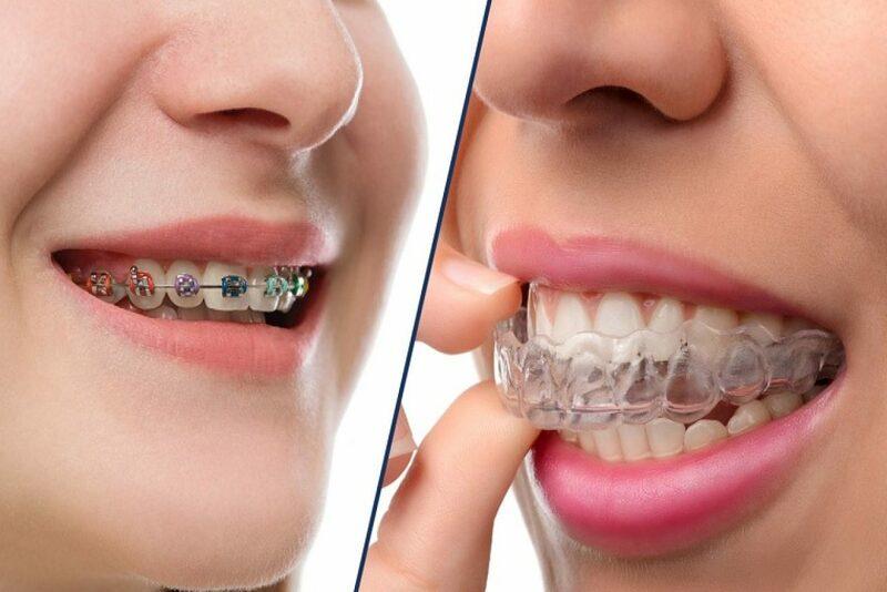 Các khay niềng răng trong suốt không lộ ra ngoài khi bạn đang niềng răng