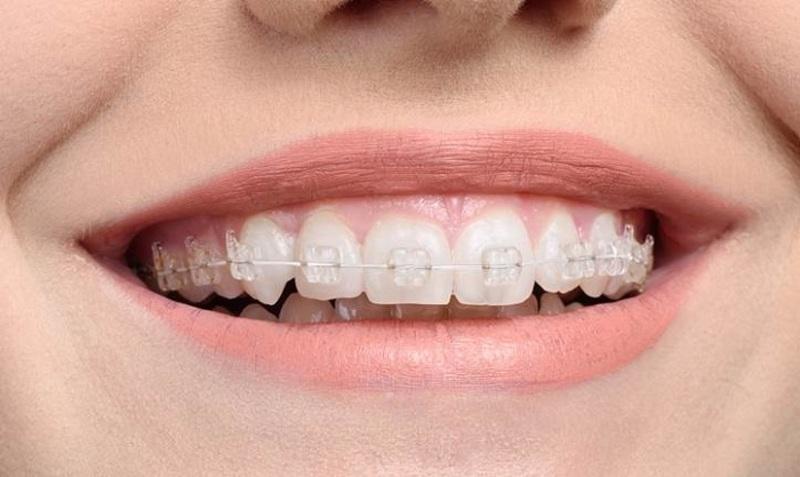 Chỉnh nha được sử dụng với những người đang gặp phải những vấn đề về răng