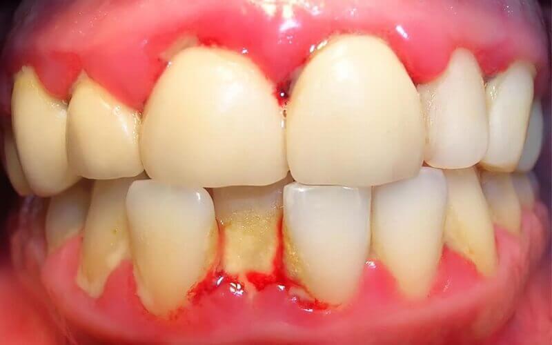 Người bị viêm nha chu thường dễ bị chảy máu chân răng