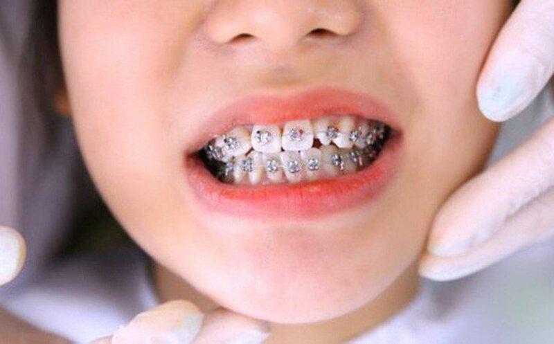 """đây là """"thời điểm vàng"""" để các bậc phụ huynh có thể thực hiện niềng răng cho bé"""