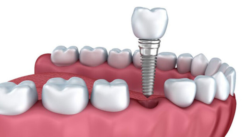 Cấy ghép Implant là phương pháp phù hợp cho những trường hợp khách hàng bị mất răng