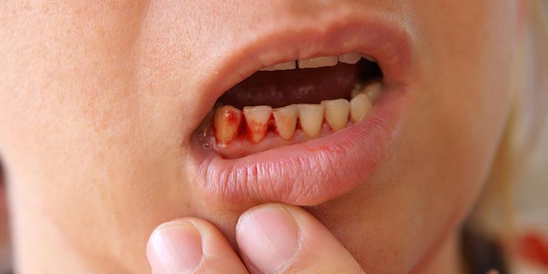 Nguyên nhân bị viêm chóp chân răng là do thiếu vitamin C