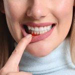 10 thuốc nam chữa viêm nha chu hiệu quả tốt hiện nay, dễ tìm